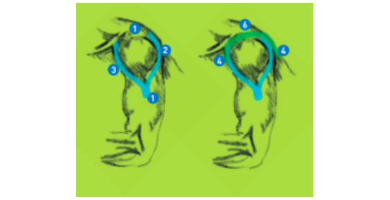 Rameno – bolesti, nestabilita